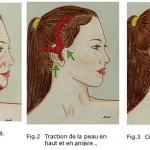 Lifting du visage vs minilifting
