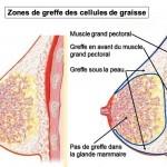 Augmentation mammaire par la lipofilling (transplantation de graisse)