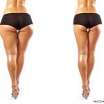 Ce qu'il faut savoir sur le lifting des fesses par Dr. Taha Rhounim Elidrissi