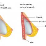 Que faut-il savoir sur l'augmentation mammaire par prothèses. Par Dr. TAHA RHOUNIM ELIDRISSI