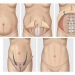 Ce qu'il faut savoir sur la chirurgie esthétique du ventre: l' abdominoplastie ou plastie abdominale