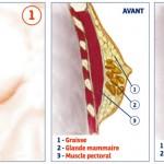 Les remèdes naturels pour la gynécomastie
