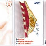 La gynécomastie par DR TAHA   RHOUNIM  ELIDRISSI