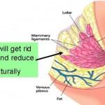 La réduction mammaire des gros seins par Dr. TAHA  RHOUNIM  ELIDRISSI