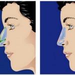 Microrhinoplastie une nouvelle technique pratiqué à New York