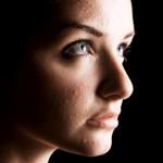 L'Acné chez les adultes : Pourquoi vous le contracter ? Et, comment les combattre ?