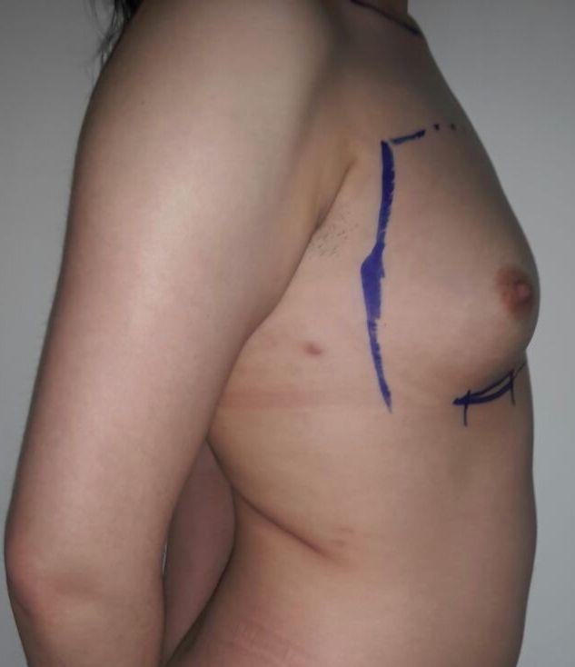 petit sein droit avant procedure