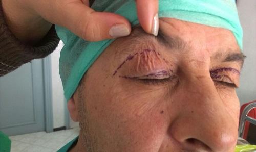 photo avant opération affaissement paupières droite supérieures à casablanca