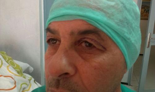 photo avant opération affaissement paupières supérieures