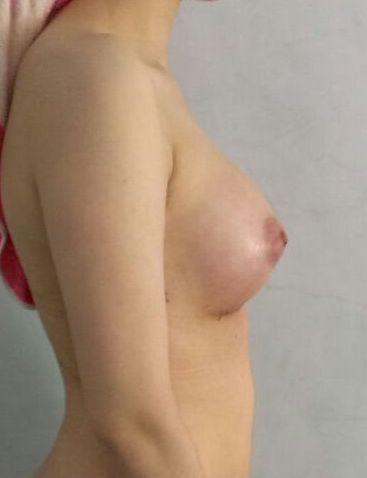 seins droit après implant mammaire