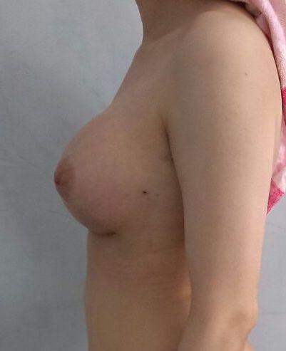 seins gauche apres implant mammaire