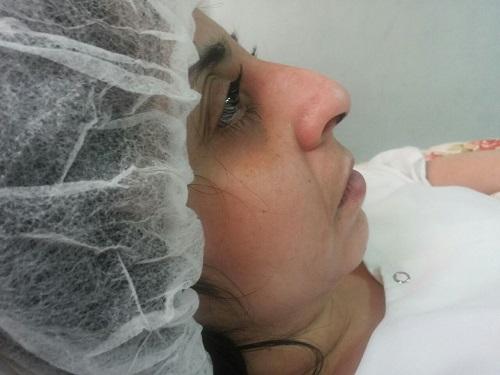 vue côté droit du nez présence de la bosse avant l'opération.