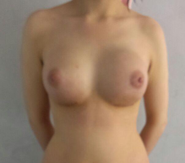 vue face des deux seins apres implant mammaire