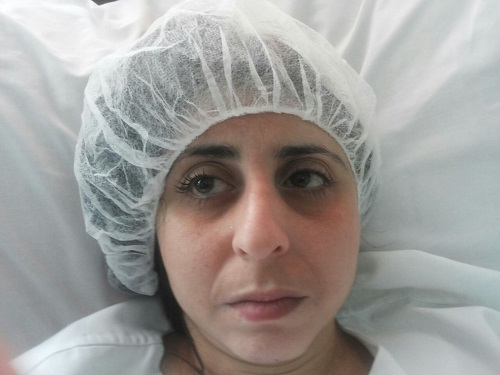 vue face du nez: présence de la bosse avant l'opération