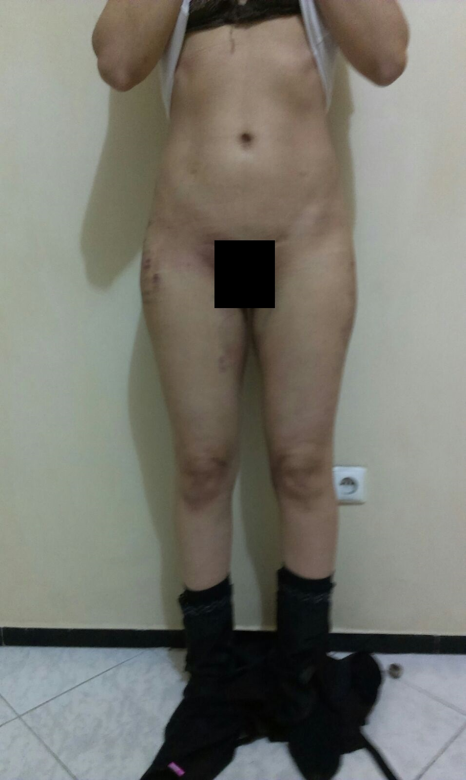 photo devant cuisse 48h intervention liposuccion culotte de cheval