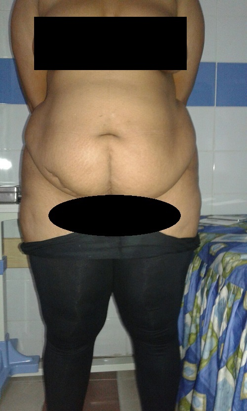 photo-face-avant-operation-abdoministie-luposuccion