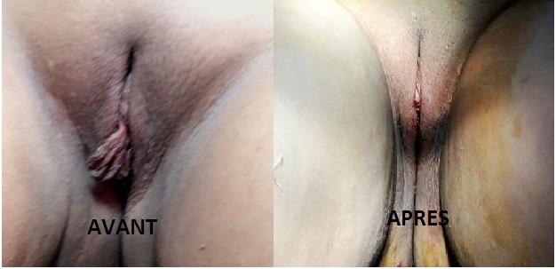 Avant et après la nymphoplastie