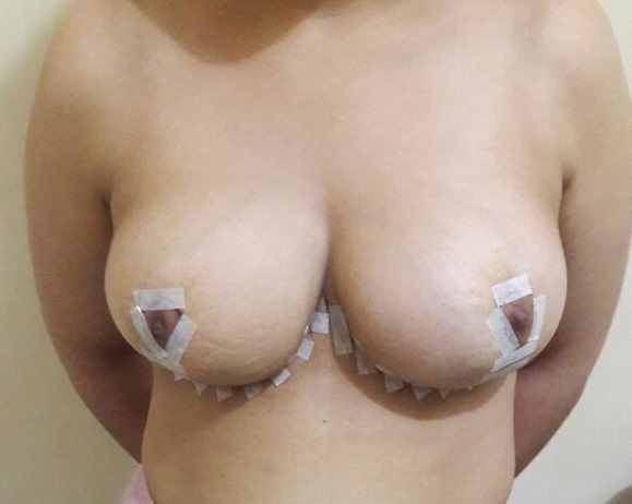 deux-seins-après-réduction-mammaire