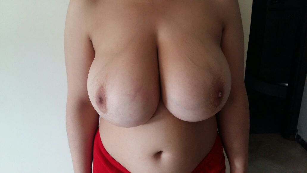 les-deux-seins-avant-réduction