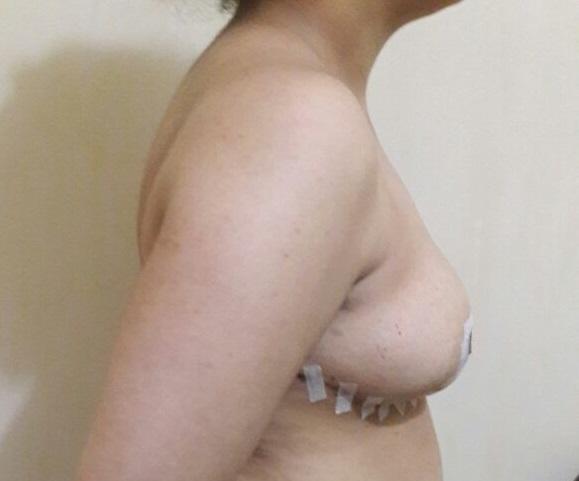 sein-droit-après-réduction-mammaire
