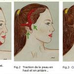 Lifting du visage après une perte excessive de poids