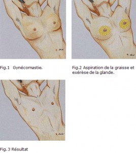 chirurgie-reduction-sein-homme
