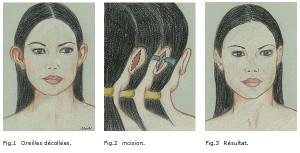 esthetique-decollement-oreilles