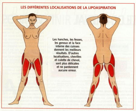 liposuccion lipoaspiration