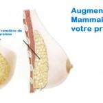 Nouvelle  Tendance  pour  l'augmentation mammaire:  Le LIPOFILLING