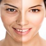 Le vieillissement cutané et la ménopause ( premiere partie)