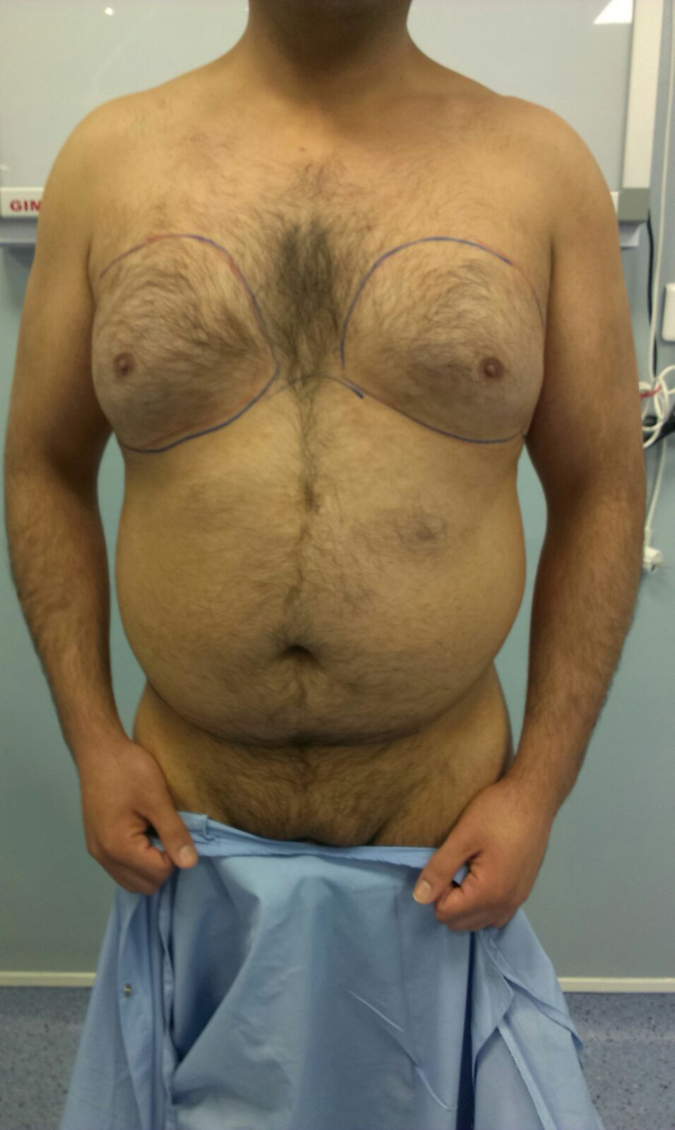 image avant lipossucion gynecomastie