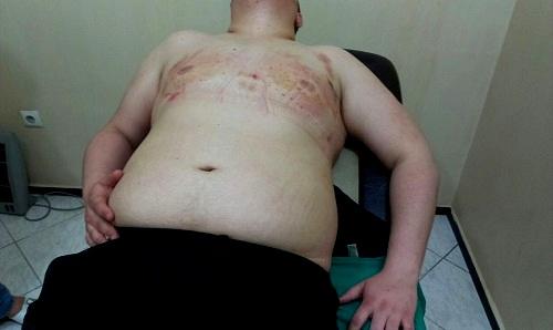 patient-apres-liposuccion-de-poitrine
