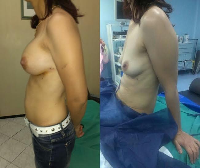 sein gauche avant après augmentation mammaire