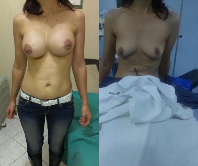 vue des deux seins avant et après operation mammaire