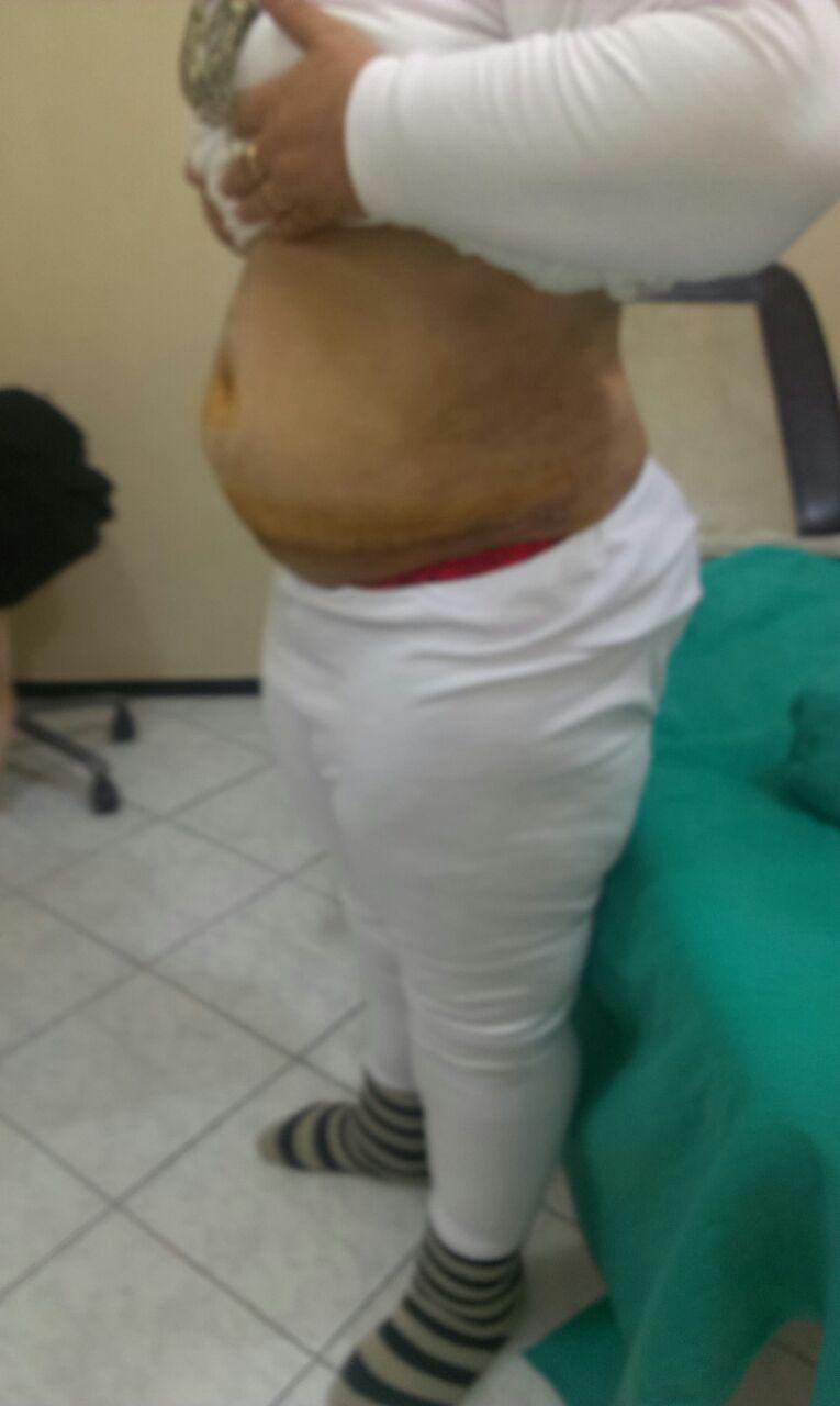 après liposuccion vue ventre cote gauche