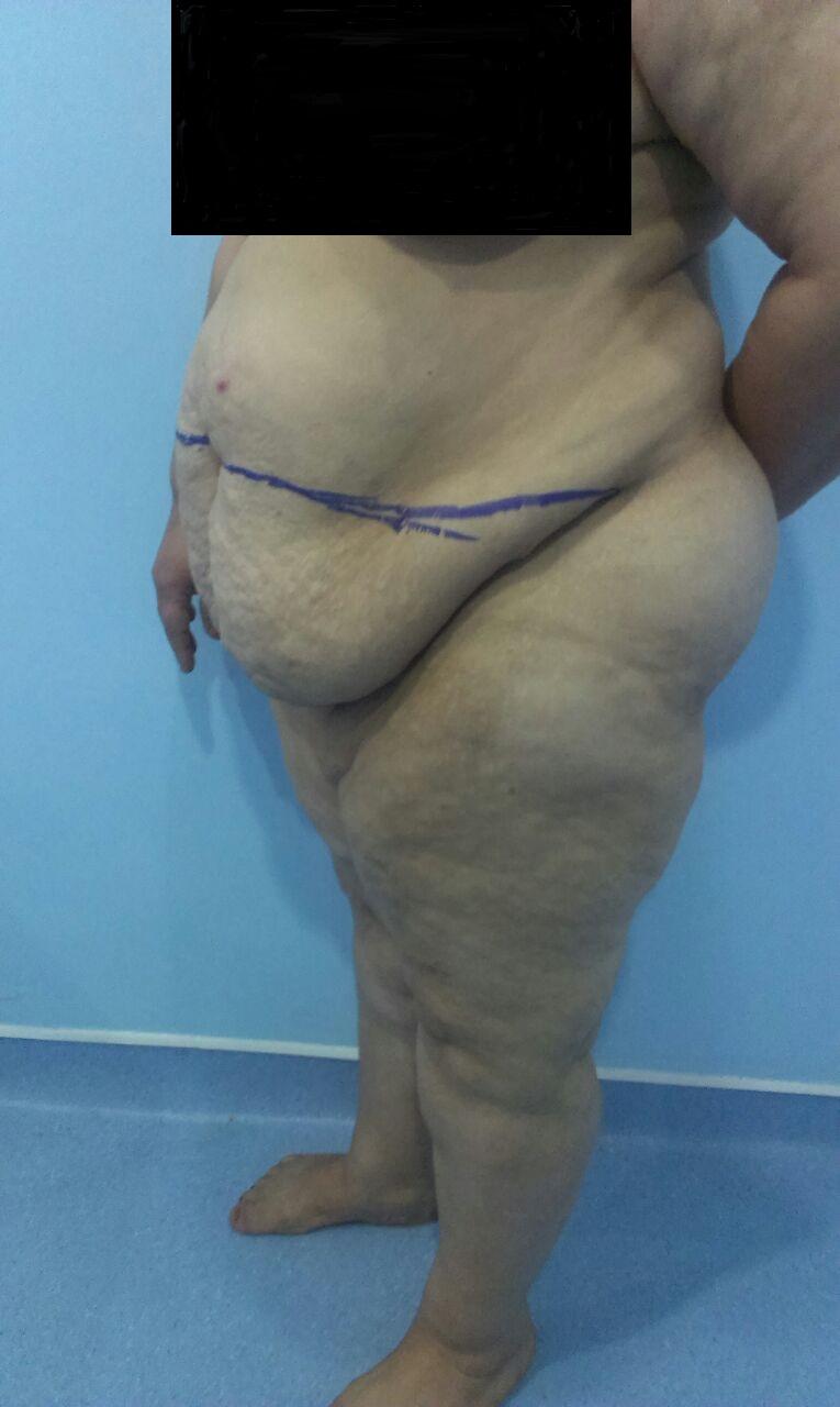 avant liposuccion surcharge graisseuse ventre vue cote gauche