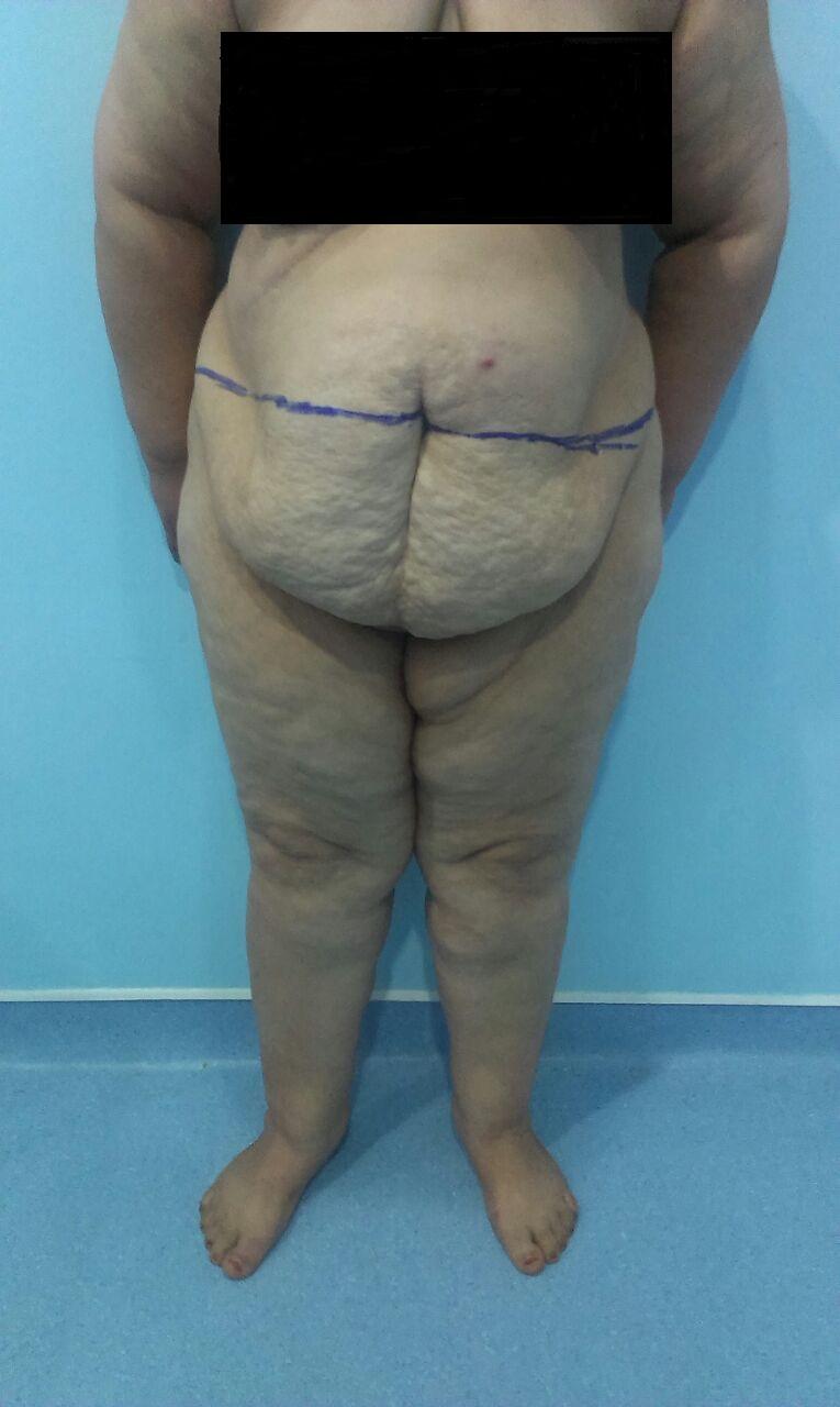 avant liposuccion vue face ventre