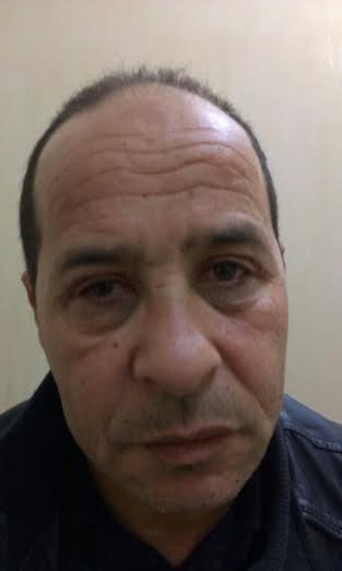 photo face après opération paupières supérieures