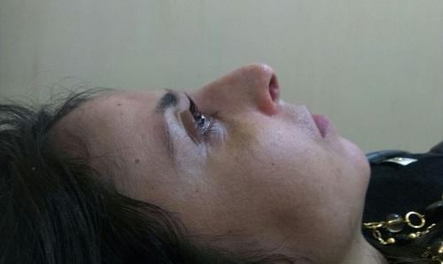 vue côté droit du nez disparition de la bosse après l'opération, position allongée