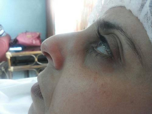 vue de côté gauche du nez : presence de la bosse avant l'operation