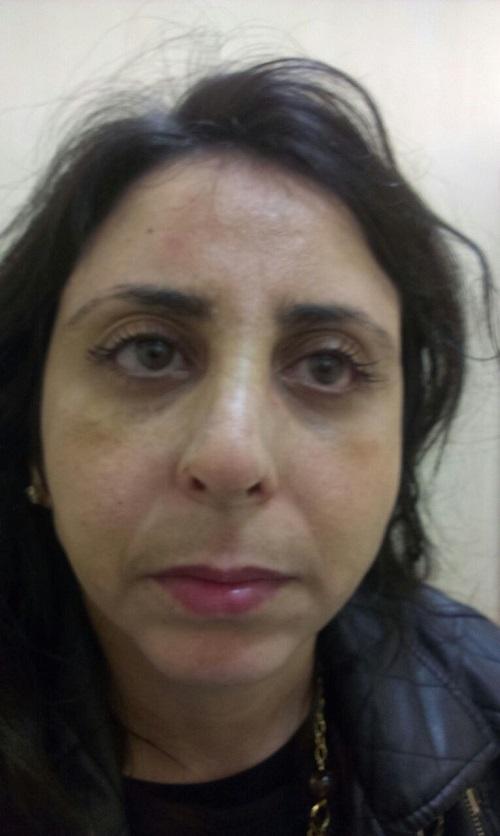 vue face du nez : disparition de la bosse aprés de l'operation