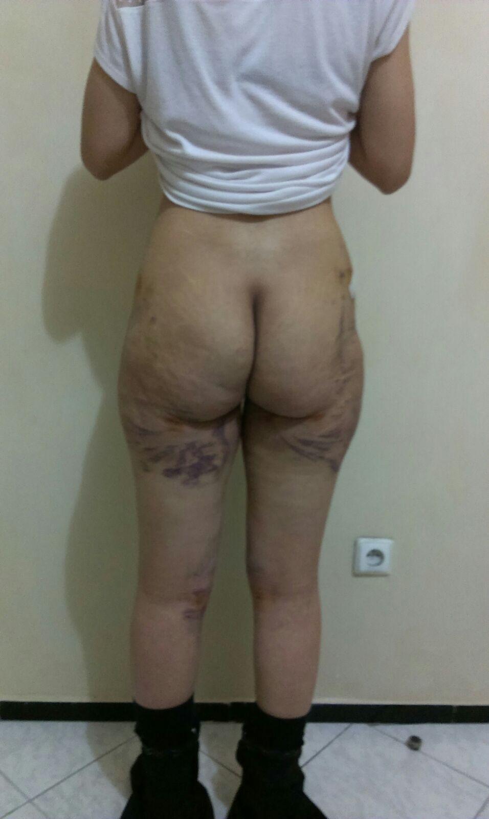 photo arriere des cuisses 48h après intervention liposuccion culotte cheval