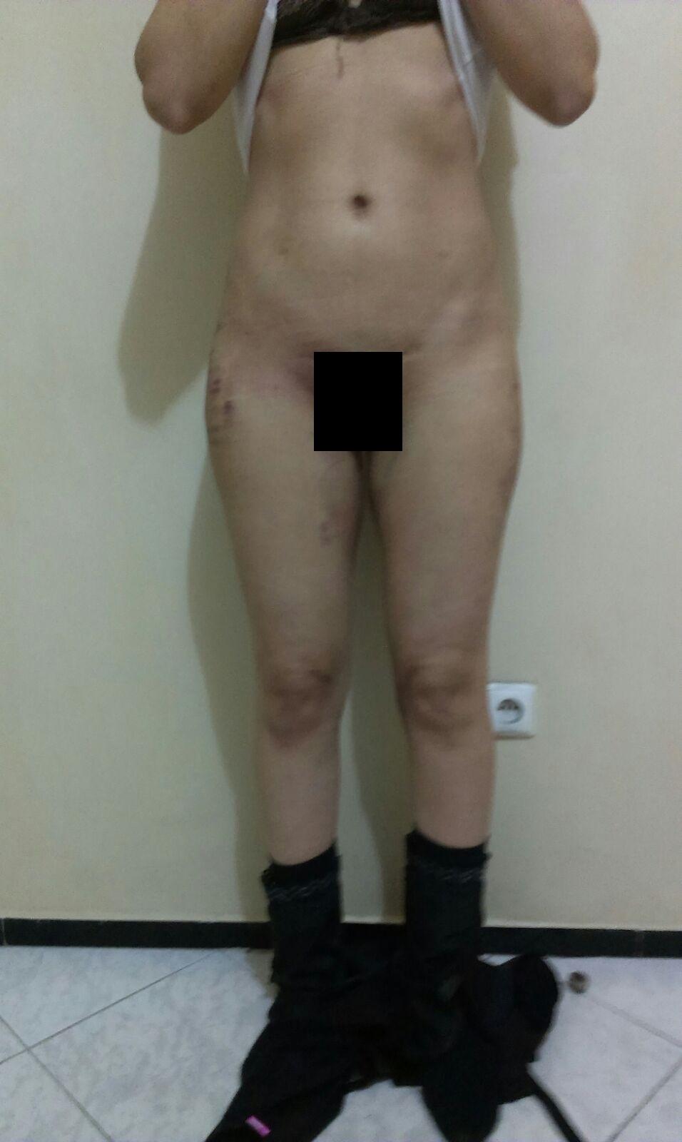 photo devant cuisse 48h intervention liposuccion culotte de cheval