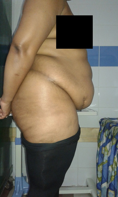 photo-cote-droit-avant-operation-abdoministie-luposuccion