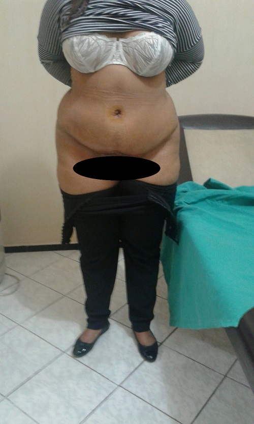 photo-face-apres-operation-abdoministie-luposuccion