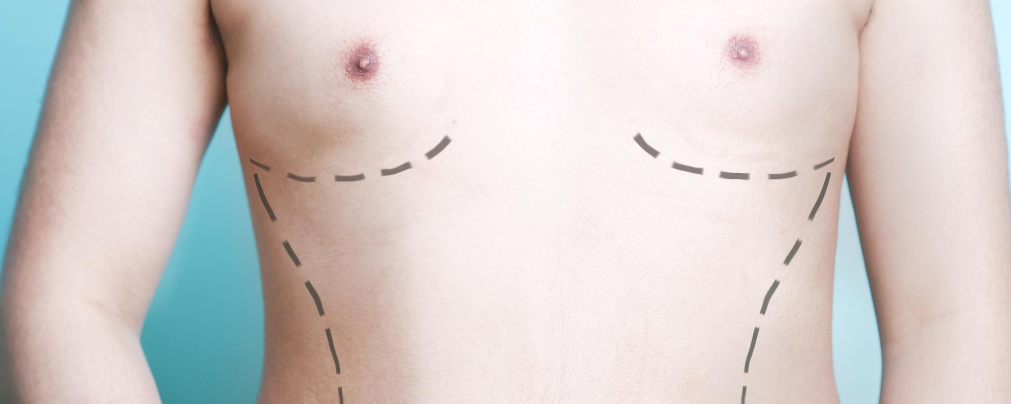 L' hypertrophie des seins <span>chez l'homme</span>