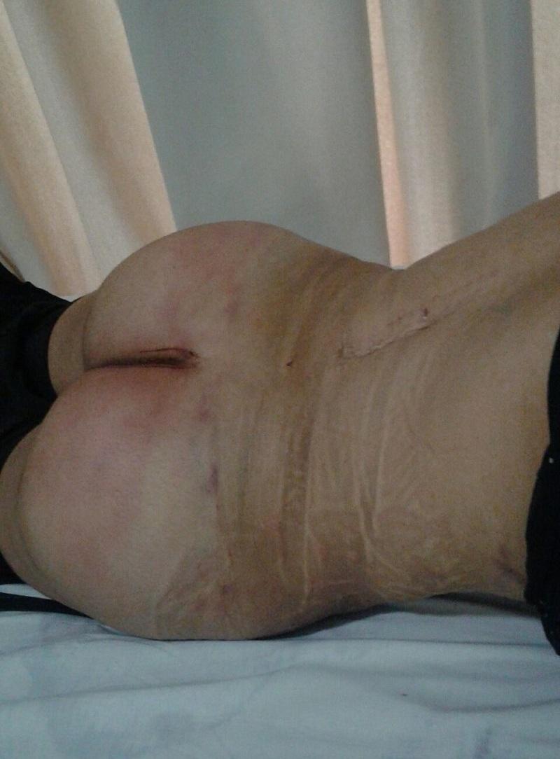 apres liposuccion des hanches et et dos, lipofilling fesses