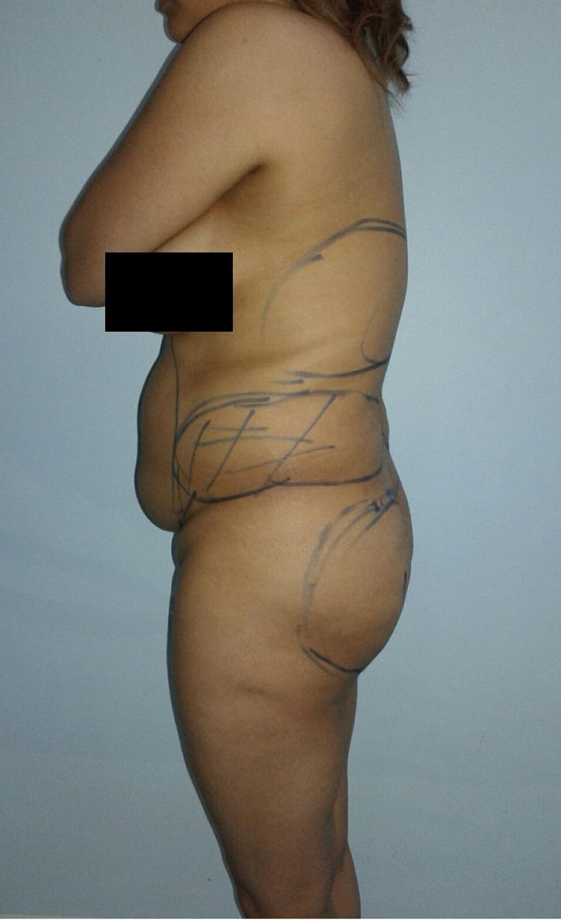 avant liposuccion lipofilling fesses vue cote gauche