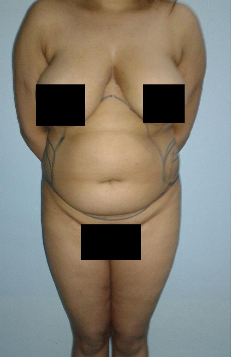 avant liposuccion et de lipofilling des fesses vue de devant