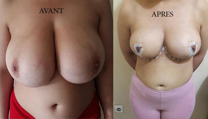 avant-apres-reduction-mammaire-maroc